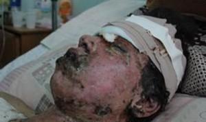 yemen-victim-300x178