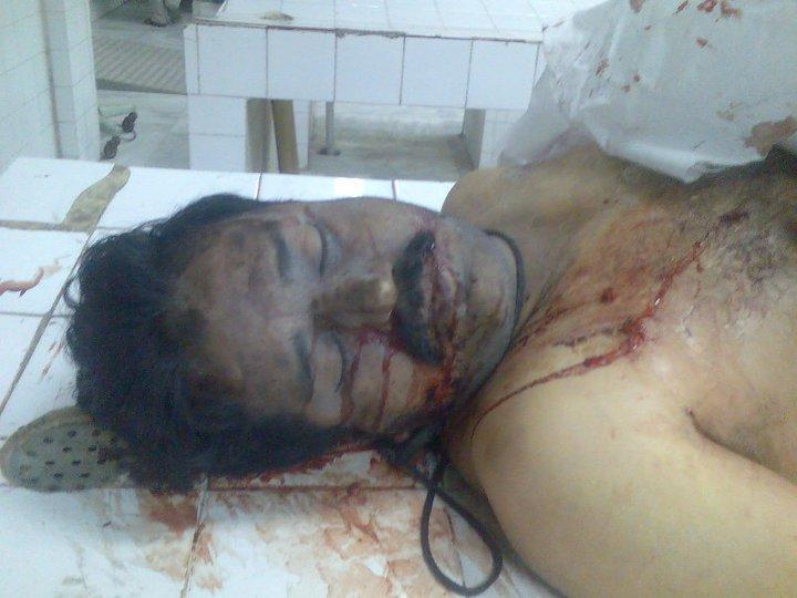shiitenews-haider-ali-martyred-by-wahabi-terrorist